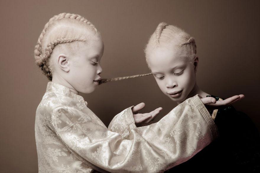 sorelle albine